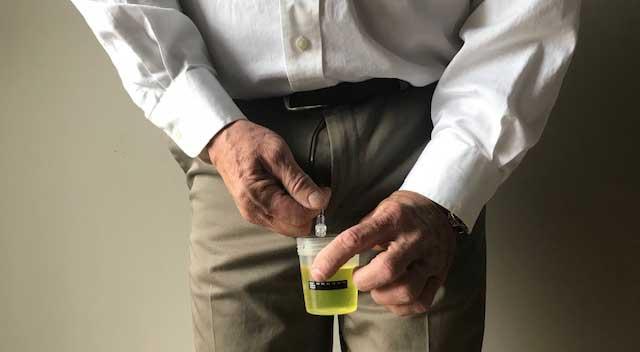 How to keep pee / urine Samples warm